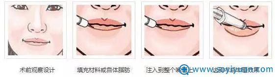 注射丰唇过程