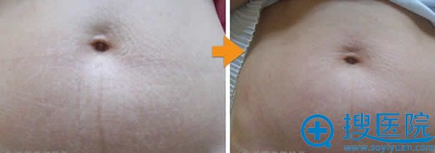 激光祛除妊娠纹案例效果图