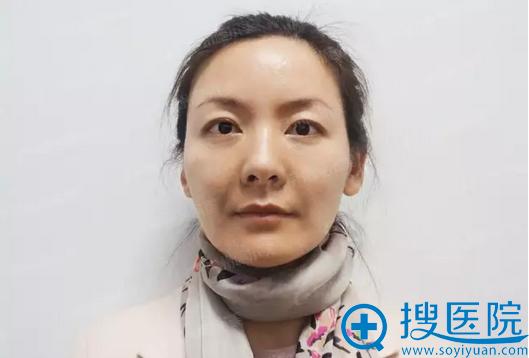 【视频】我在江苏施尔美整形医院做面部悬吊提升手术的亲身经历