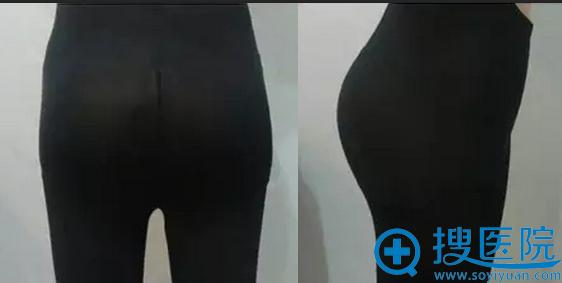 自体脂肪丰臀术后第十天臀部效果