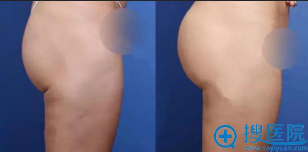 自体脂肪丰臀手术前后对比图