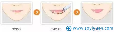 注射丰唇手术流程