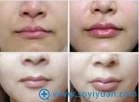 玻尿酸丰唇案例效果
