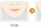 乌鲁木齐伊丽莎白鲁峰教授 完美唇形你也可以拥有