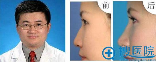 上海九院刘凯医生及鼻部整形效果图