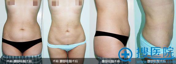东方瑞丽秦继峰腰腹部吸脂案例图