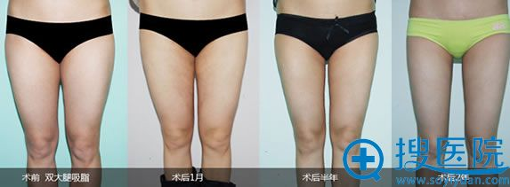 东方瑞丽秦继峰大腿吸脂案例图