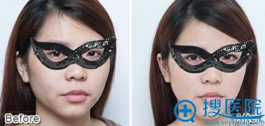 北京八大处玻尿酸全脸塑形效果