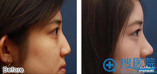 北京八大处玻尿酸注射隆鼻效果