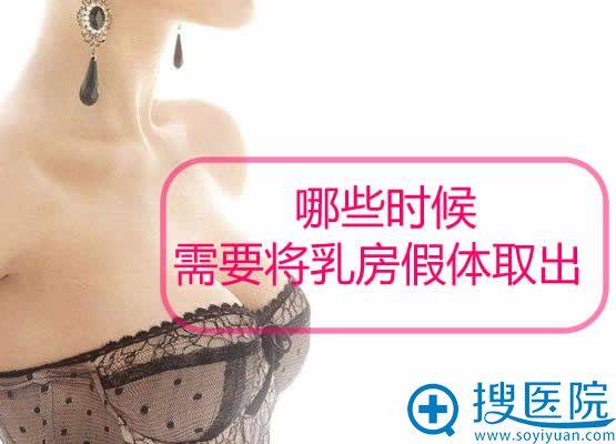 哪些时候需要将乳房假体取出