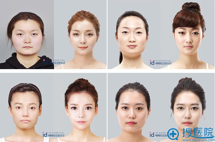 韩国id整形医院下颌角整形手术案例