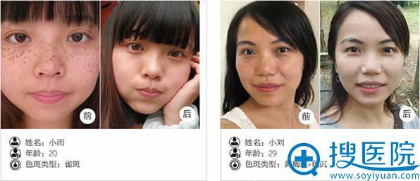 重庆当代整形祛斑案例前后效果对比
