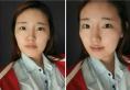 说说我去韩国原辰整形医院找朴原辰做颧骨和下颌角整形的感受