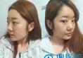 【真实经历】在韩国id整形医院做V-line下颌角+鼻部修复手术2年