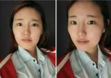 【真实经历】在韩国原辰整形医院做颧骨+下颌角+下巴整形两个月
