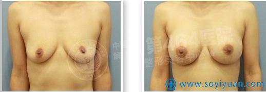 464整形医院假体隆胸前后对比