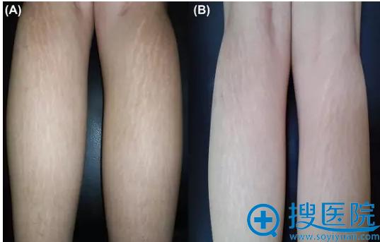 CO₂点阵激光治疗组治疗前(A)以及治疗后6个月(B)