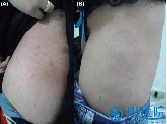 微针治疗组治疗前(A)以及治疗后6个月(B)