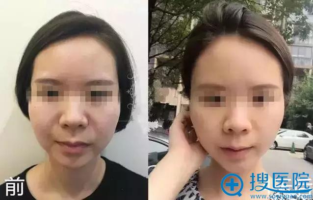 徐啟翔博士精品案例二:阿花术前术后对比照