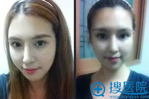 徐啟翔博士精品案例一:术后两个月