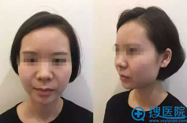 徐啟翔博士精品案例二:阿花术前照
