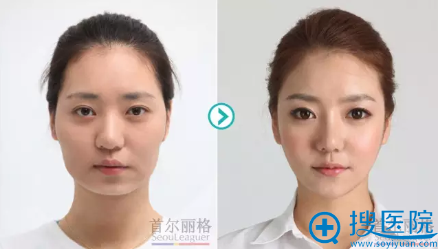 上海首尔丽格颌面整形案例效果对比图