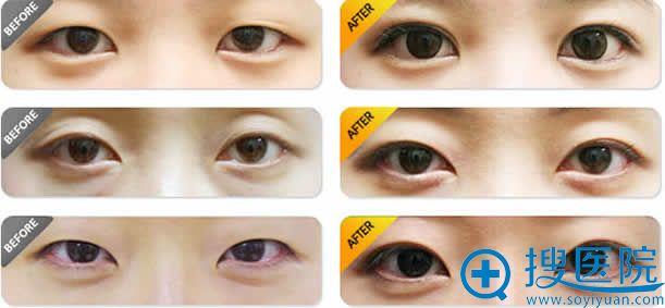 北京八大处整形双眼皮手术案例图
