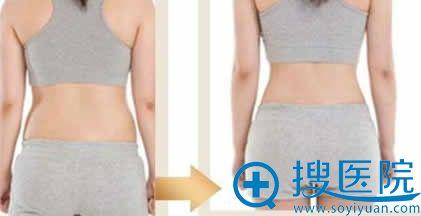 西安华仁整形吸脂术后效果图