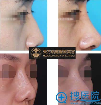北京东方瑞丽肋软骨鼻尖整形效果图