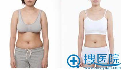 西安华仁韩式吸脂减肥对比照片