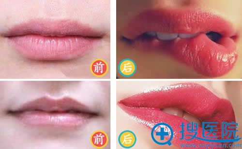【图】玻尿酸丰唇前后效果对比照片