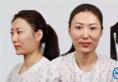 上海首尔丽格下颌角+颧骨手术真人案例 术后堪比韩国明星