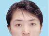 田永成整形BTS保妥适瘦脸真人案例 大饼脸秒变小V脸