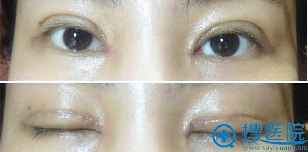 全切双眼皮恢复过程拆线第十天照片