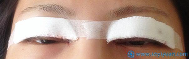 刚做完全切双眼皮手术时照片
