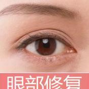 双眼皮修复方法有哪些?韩国bio曹仁昌修复双眼皮好吗