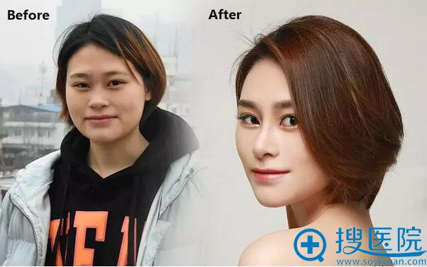 手术前后效果对比
