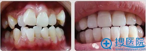 北京美联臣牙齿畸形矫正案例图