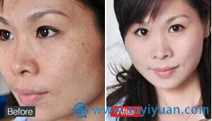 深皮层黄褐斑治疗4疗程后效果