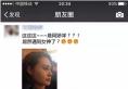 【真人案例】揭秘北京艺星整形医院王英勇隆鼻怎么样