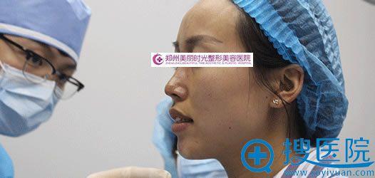 刚做完线雕隆鼻手术的照片