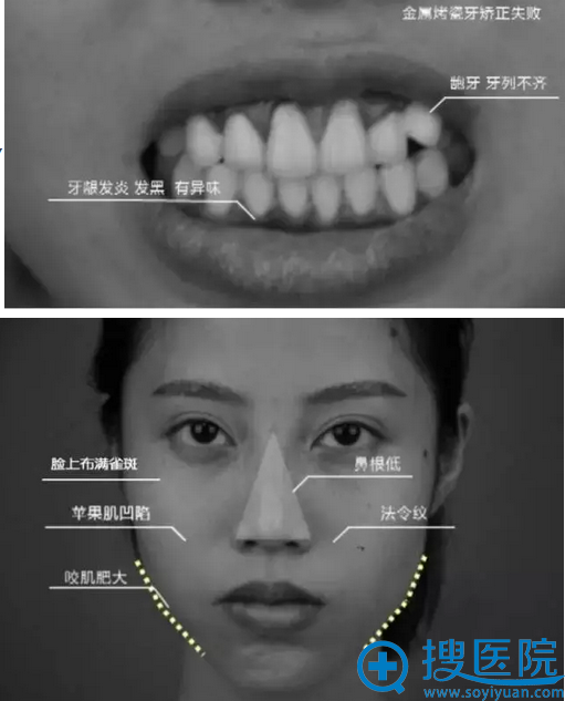 术前检查:龅牙+面部一系列问题
