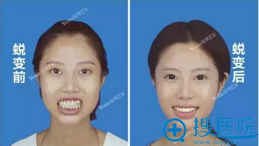 龅牙矫正术前术后对比照片