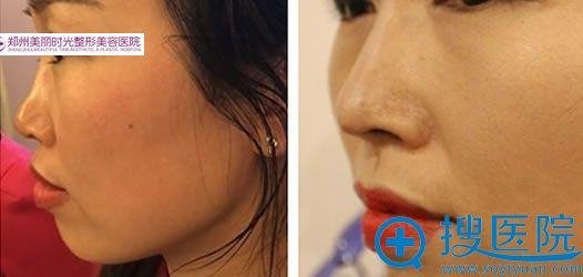 线雕隆鼻术前术后对比照片