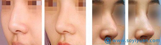 天津伊美尔整形隆鼻膨体取出案例