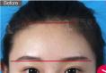 昆明吴氏嘉美注射医生仁春梅果酸换肤+玻尿酸面部填充真人案例