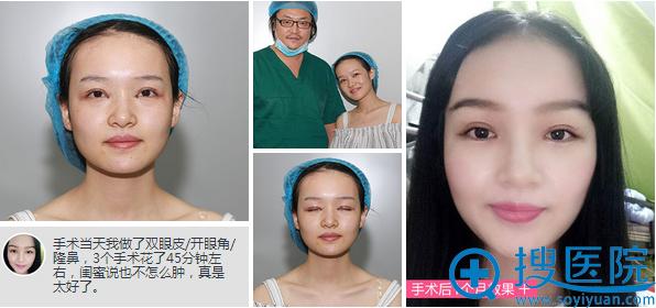 深圳福华整容医院孟晨曦双眼皮、开眼角、隆鼻手术效果
