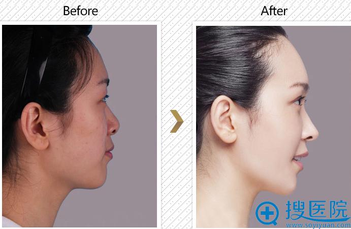 杭州艺星刘波自体软骨隆鼻对比图