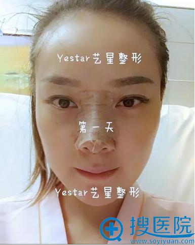 鼻综合术后第一天即刻效果