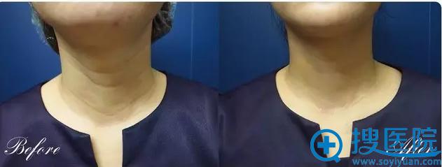颈纹填充针注射效果案例